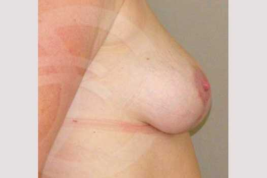 Breast Reduction REDUCTION MAMMOPLASTY after profile