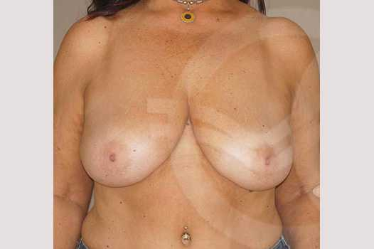 Breast Reduction REDUCTION MAMMOPLASTY before forntal