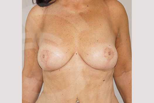 Breast Reduction REDUCTION MAMMOPLASTY after frontal
