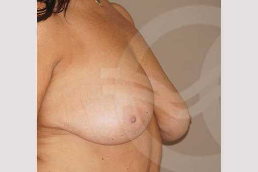 Breast Reduction REDUCTION MAMMOPLASTY before side