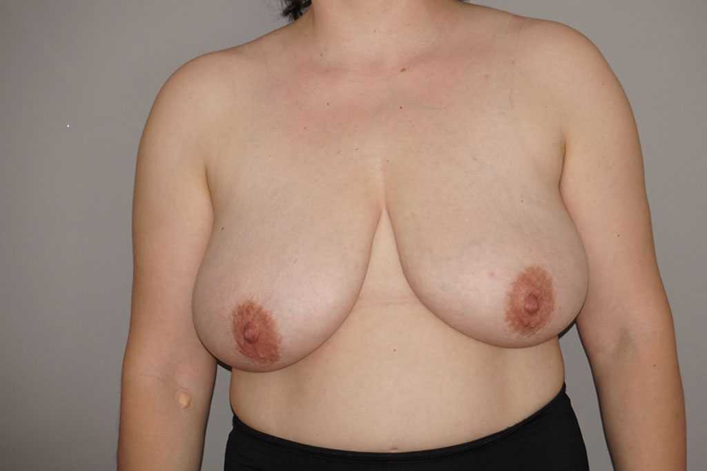 Breast Reduction Inverted-T-scar before forntal