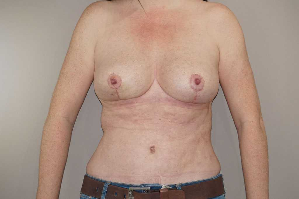Breast Reduction Inverted-T-scar after frontal