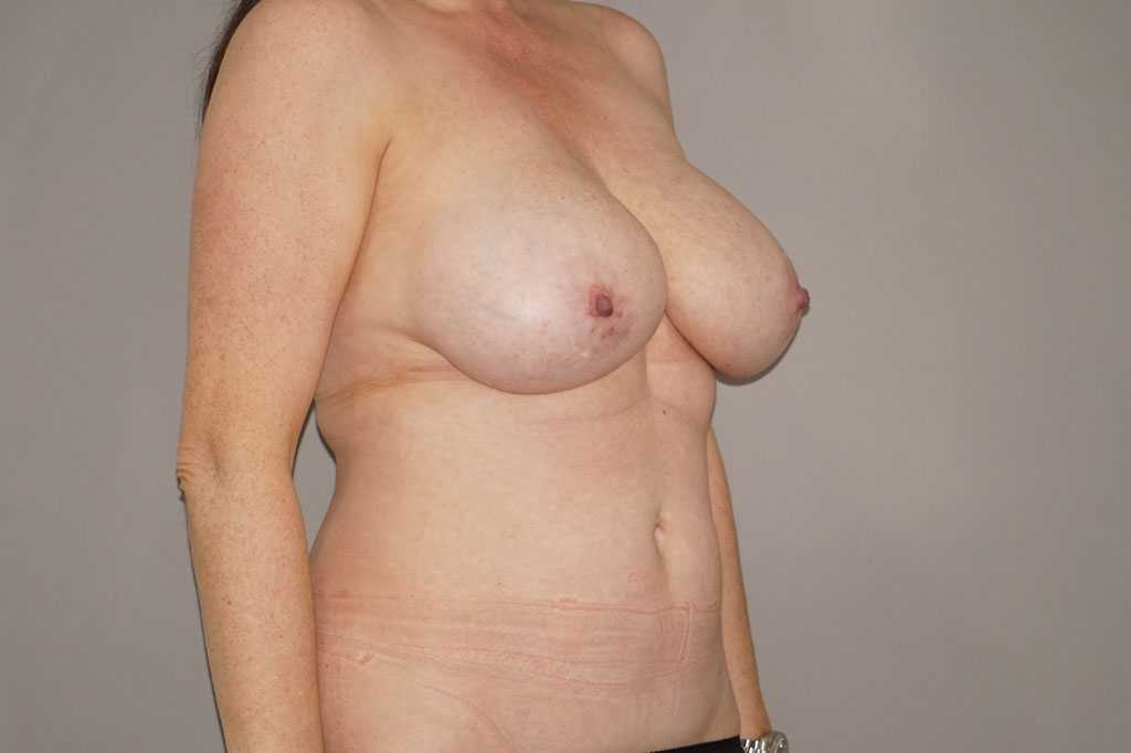 Breast Reduction Inverted-T-scar before side
