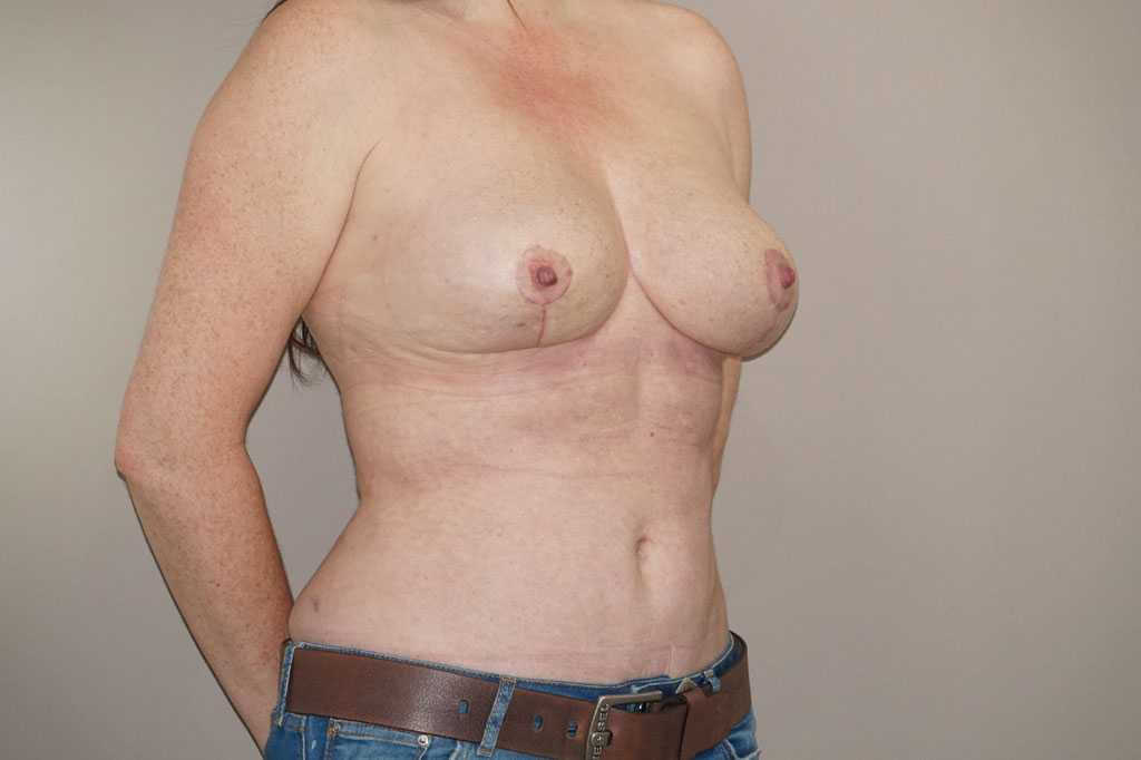 Breast Reduction Inverted-T-scar after side