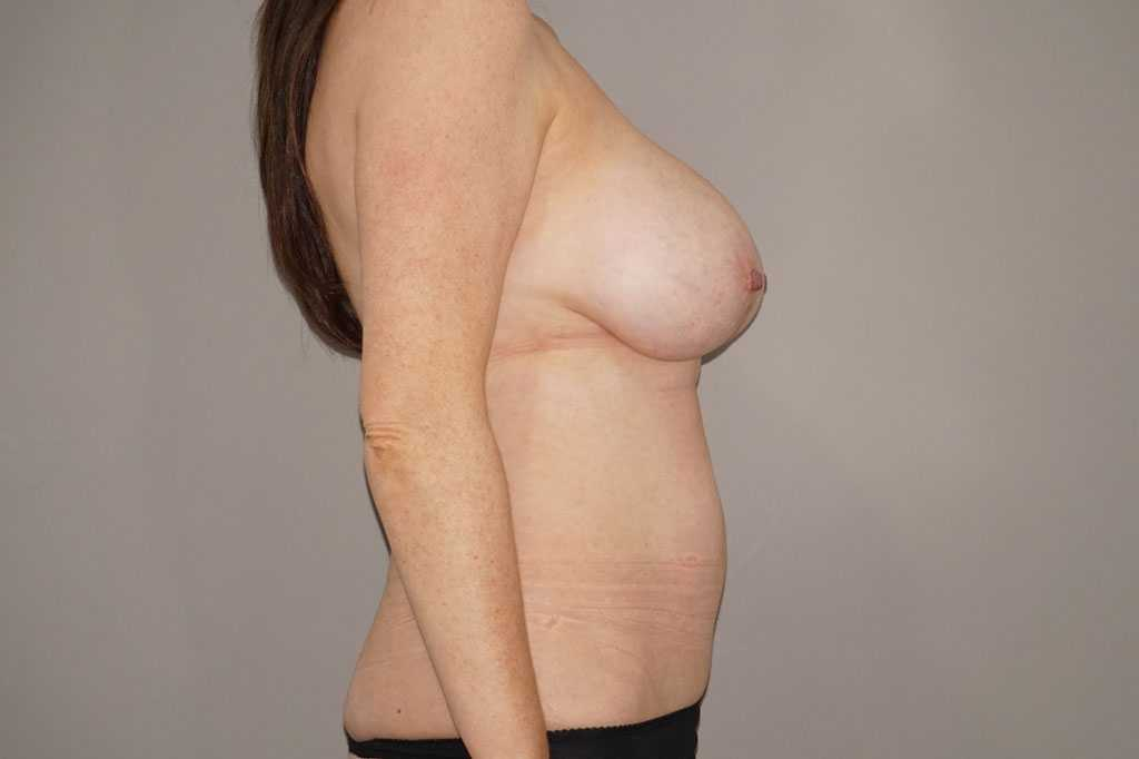 Breast Reduction Inverted-T-scar before profile
