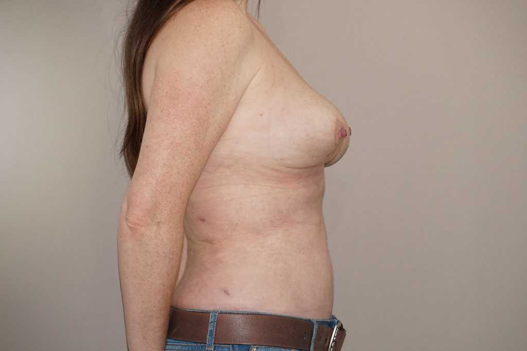 Breast Reduction Inverted-T-scar after profile