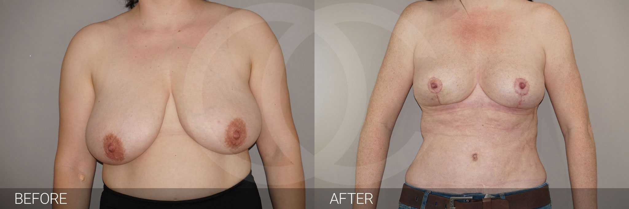 Breast Reduction Inverted-T-scar ante/post-op I