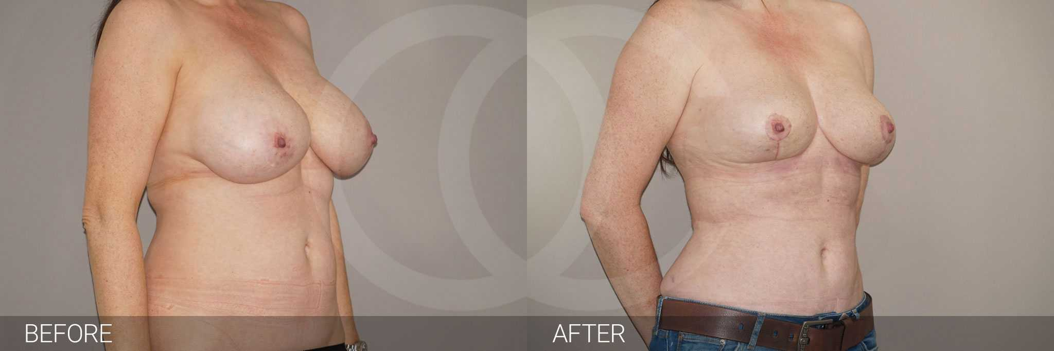 Breast Reduction Inverted-T-scar ante/post-op II