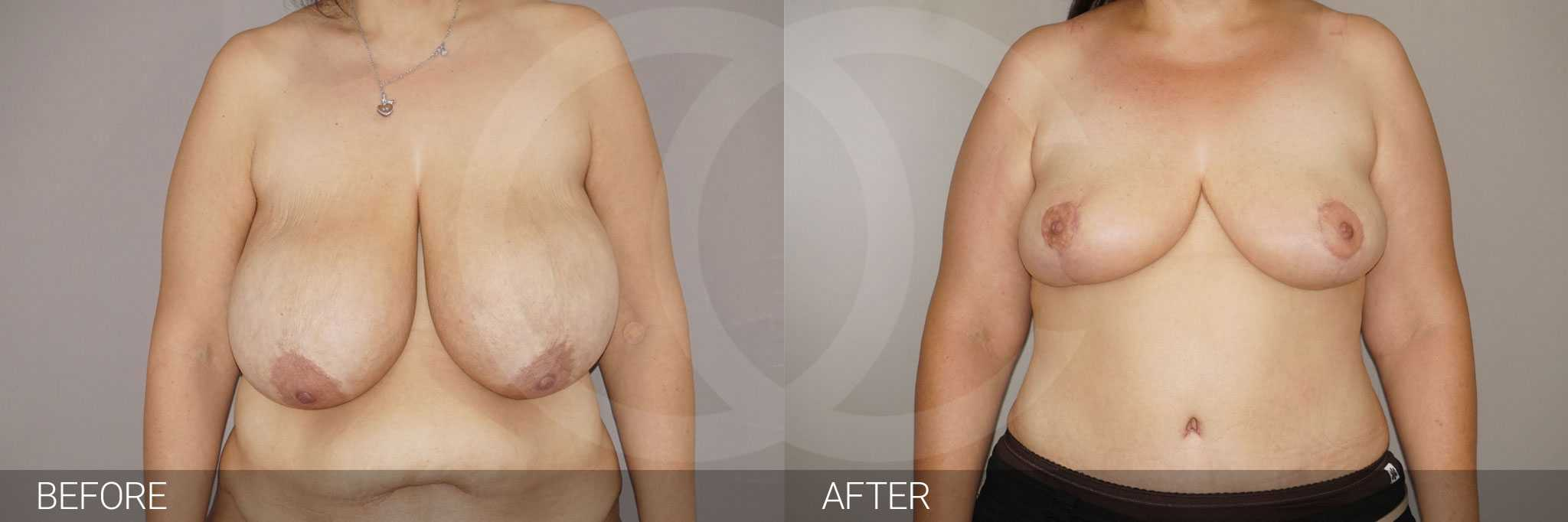Breast Reduction in combination ante/post-op I