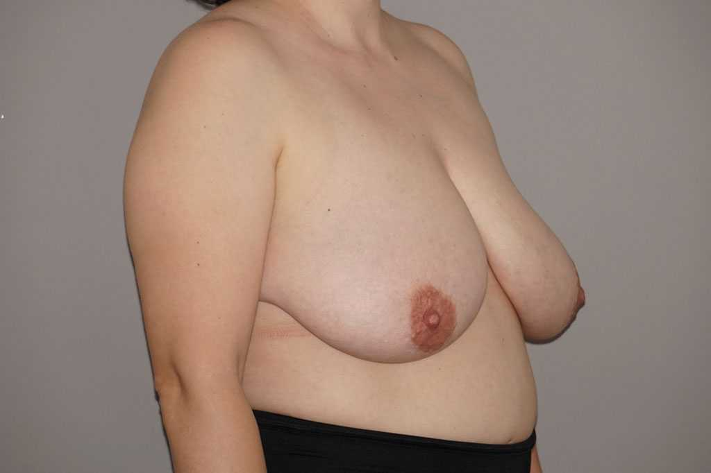 Breast Reduction with liposuction before side
