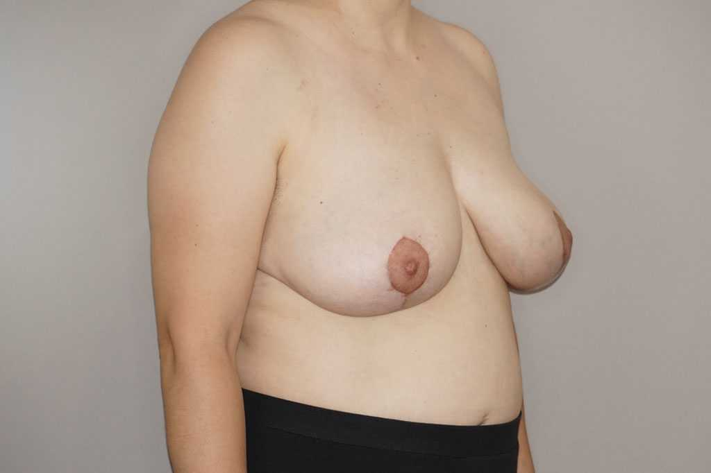 Breast Reduction with liposuction after side