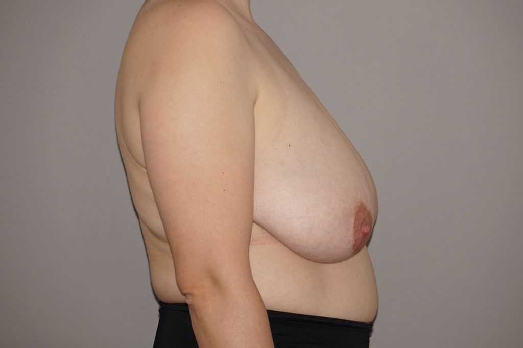 Breast Reduction with liposuction before profile