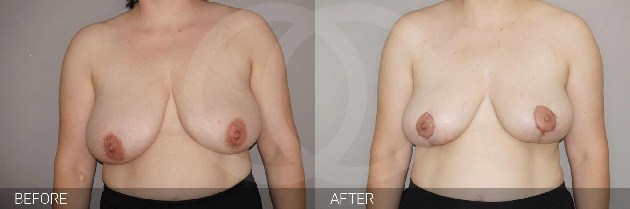 Reducción de pechos con liposucción ante/post-op I