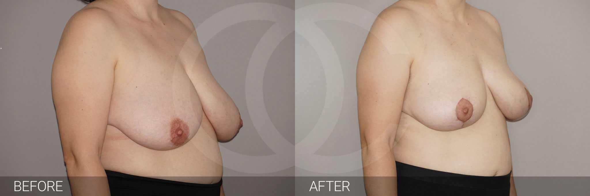 Reducción de pechos con liposucción ante/post-op II