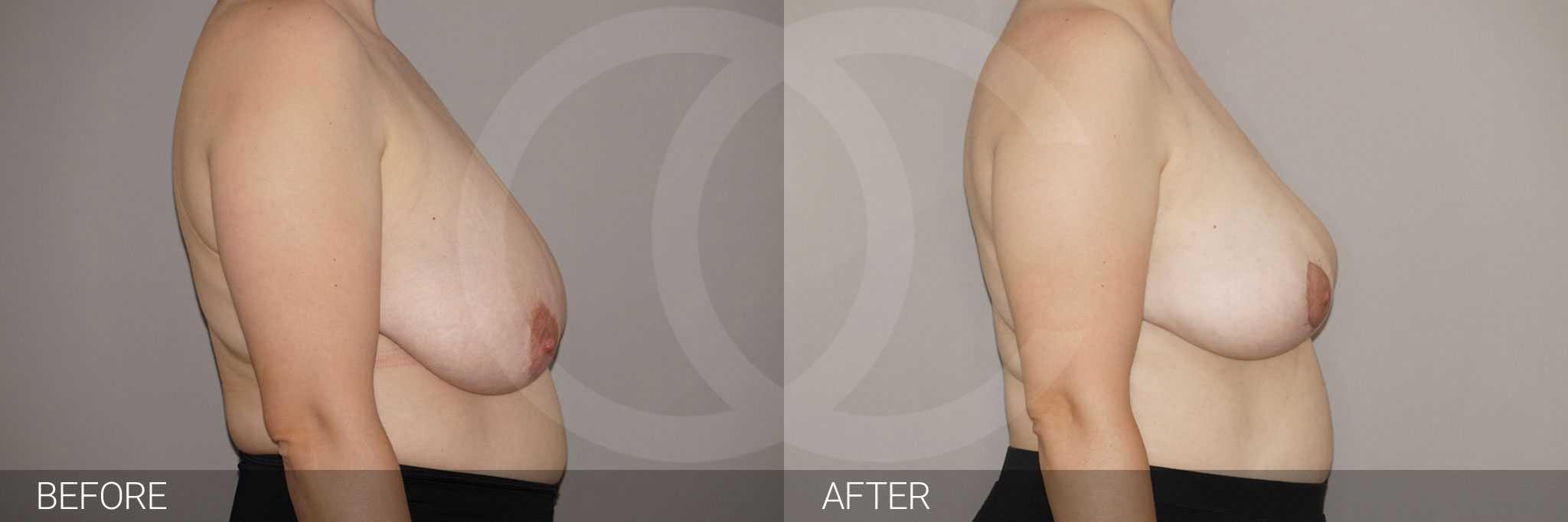 Reducción de pechos con liposucción ante/post-op III