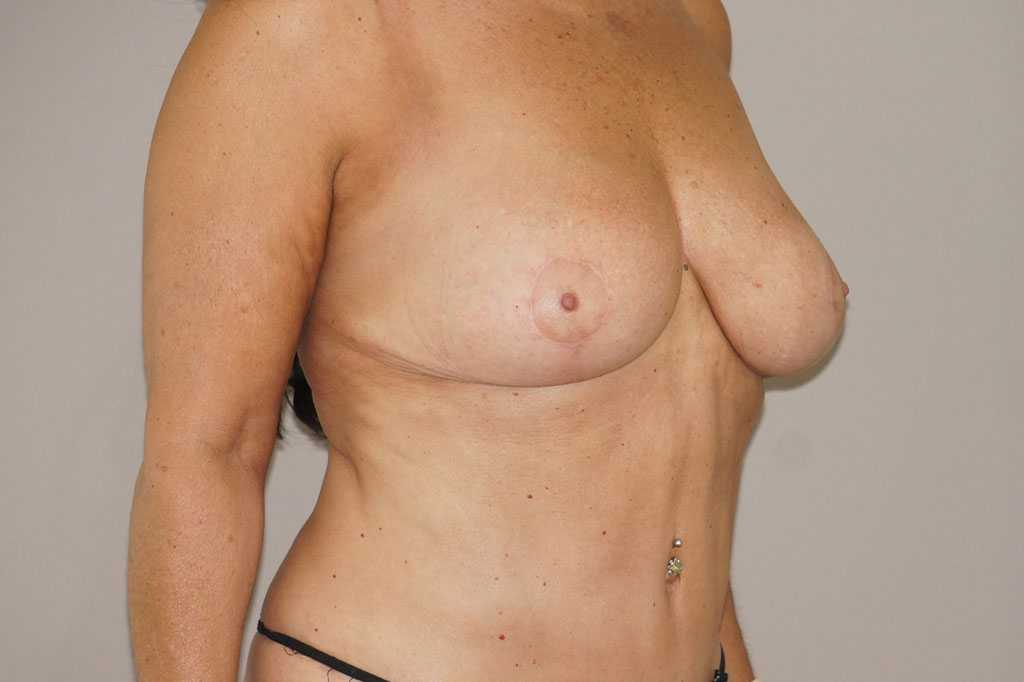 Breast Reduction REDUCTION MAMMOPLASTY after side