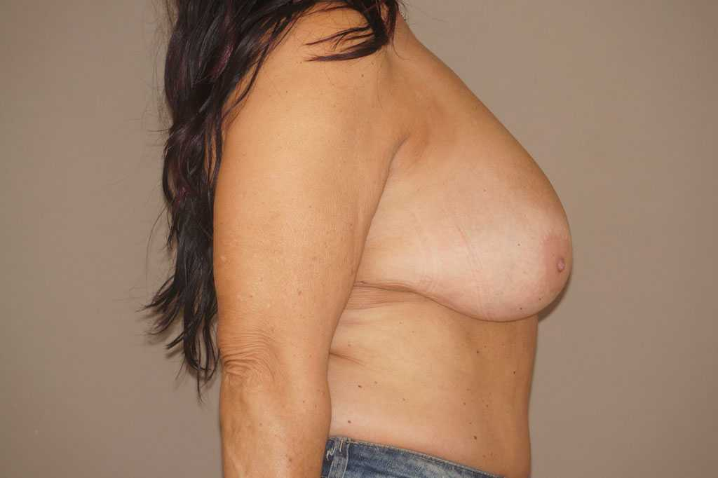 Breast Reduction REDUCTION MAMMOPLASTY before profile