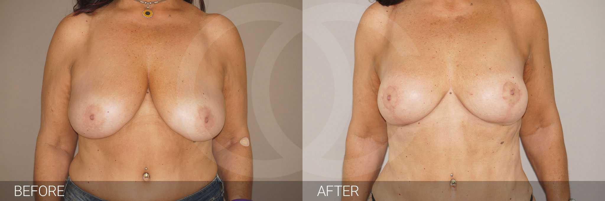 Reducción de pecho foto antes y después