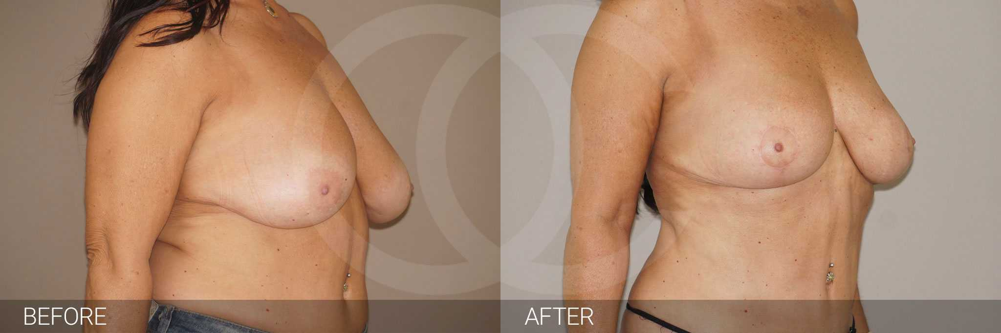 Réduction mammaire 4 ante/post-op II