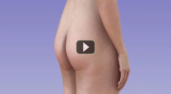 Buttock Augmentation Animation Implants. Ocean Clinic Marbella