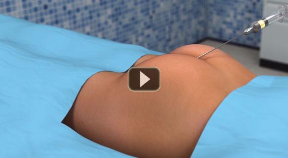 Aumento de Glúteos Animación en 3D Glúteoplastia Marbella Ocean Clinic
