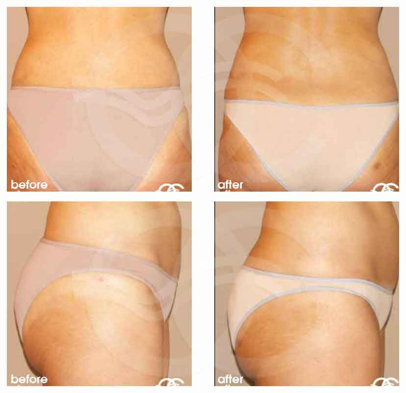 Fat Transfer Brazilian Butt Lift Before After Photo Ocean Clinic Marbella Spain