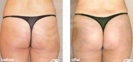 Buttock Augmentation Before After Gluteoplasty Photo Ocean Clinic case 01 Marbella