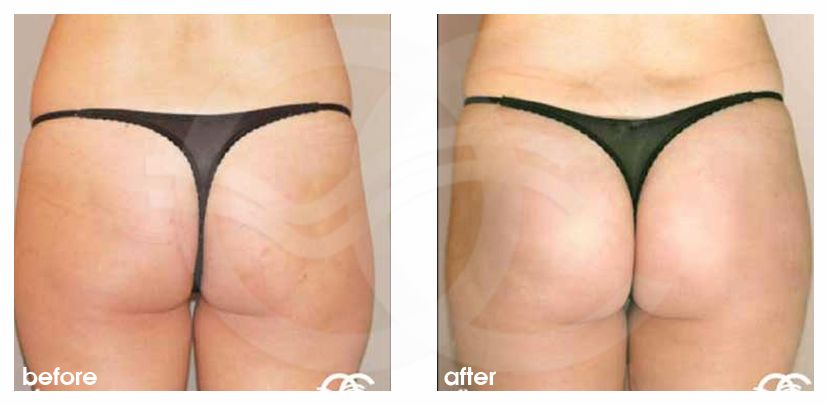 Buttock Augmentation Before After Buttock Implants Photo back Marbella Ocean Clinic