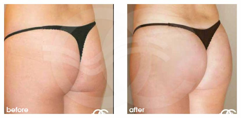 Buttock Augmentation Before and After Marbella Ocean Clinic