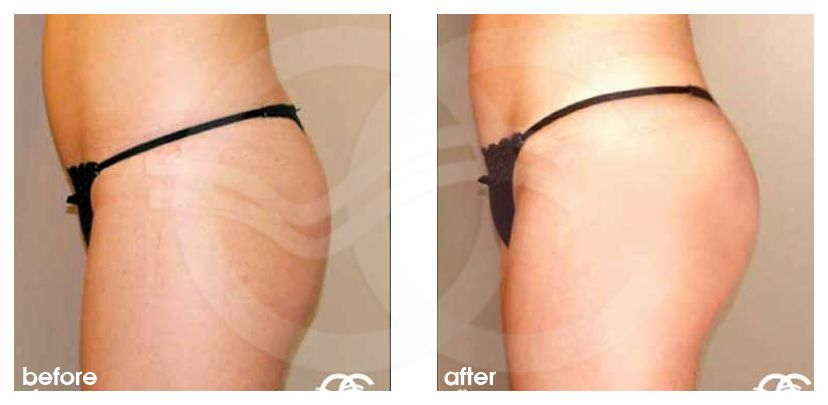 Buttock Augmentation Before After Buttock Implants Photo profile Marbella Ocean Clinic