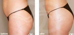 Buttock Augmentation Before After Gluteoplasty Photo Ocean Clinic case 02 Marbella