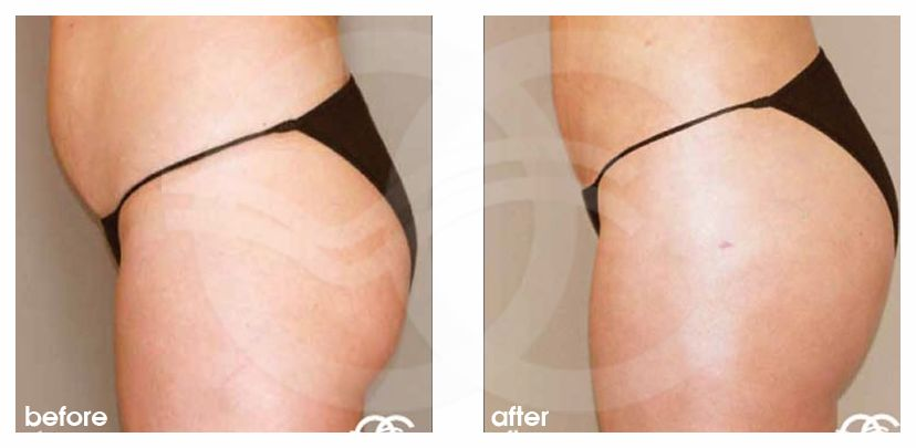 Buttock Augmentation Before After Brazilian Butt Lift Fat Injection Photo side Marbella Ocean Clinic