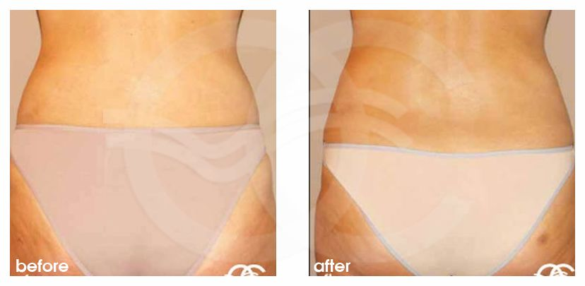 Augmentation des Fesses 03 before after forntal