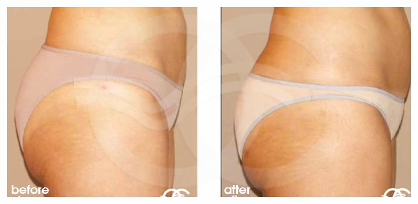 Fat grafting Fat transfer to buttocks ante/post-op lateral