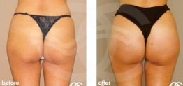 Buttock Augmentation Before After Gluteoplasty Photo Ocean Clinic case 04 Marbella