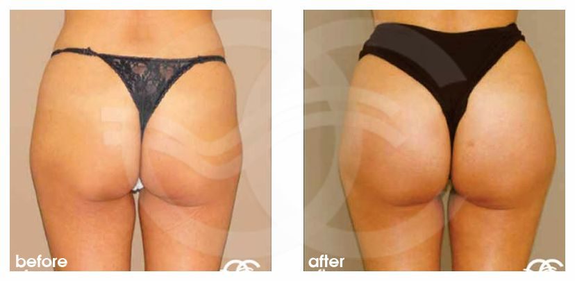 Buttock Augmentation Before After Gluteal Implants Photo back Marbella Ocean Clinic
