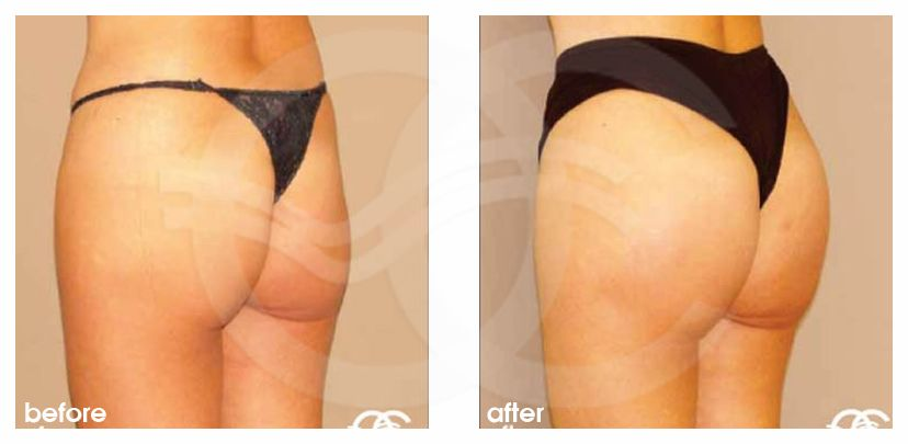 Buttock Augmentation Before After Gluteal Implants Photo side Marbella Ocean Clinic