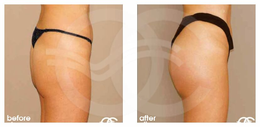 Buttock Augmentation Before After Gluteal Implants Photo profile Marbella Ocean Clinic