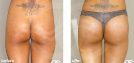 Buttock Augmentation Before After Gluteoplasty Photo Ocean Clinic case 05 Marbella