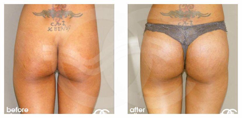 Po-Vergrößerung Vorher Nachher Gesäßaugmentation mit Implantate Foto hinten. Marbella Ocean Clinic