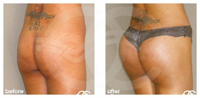 Buttock Augmentation Before After Gluteoplasty Photo side Marbella Ocean Clinic