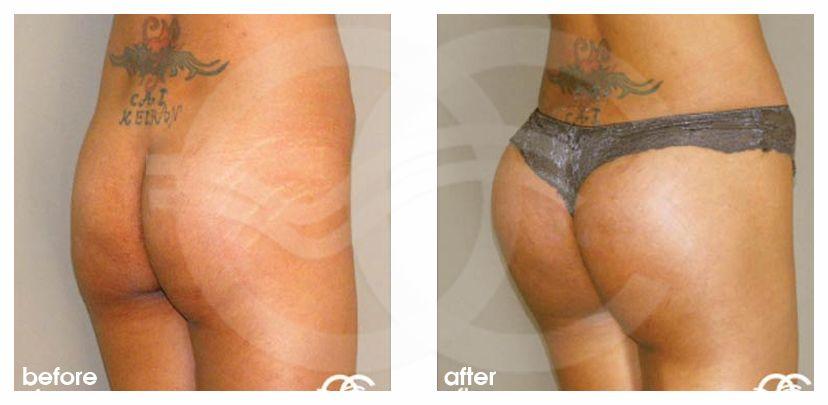 Po-Vergrößerung Vorher Nachher Gesäßaugmentation mit Implantate Foto seitlich. Marbella Ocean Clinic