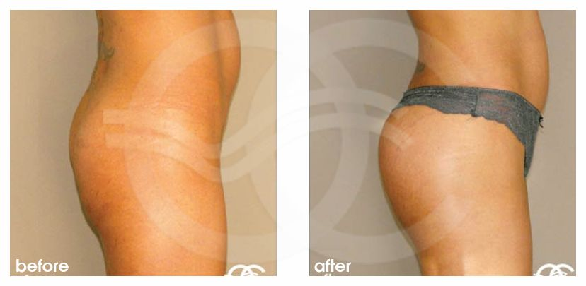 Buttock Augmentation Before After Gluteoplasty Photo profile Marbella Ocean Clinic