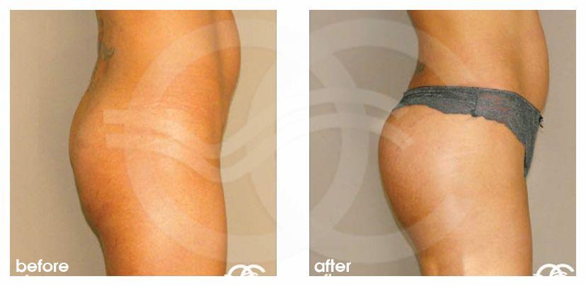 Po-Vergrößerung Vorher Nachher Gesäßaugmentation mit Implantate Foto profil. Marbella Ocean Clinic