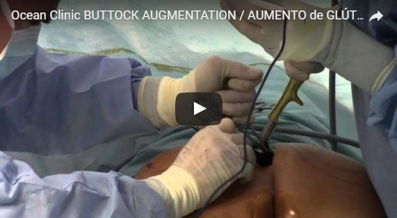 Buttock Augmentation Video Surgery with Implants Ocean Clinic Marbella