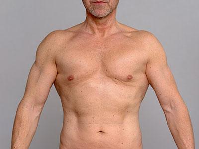 Liposucción, cirugía plástica para hombres en Marbella y Madrid. Ocean Clinic
