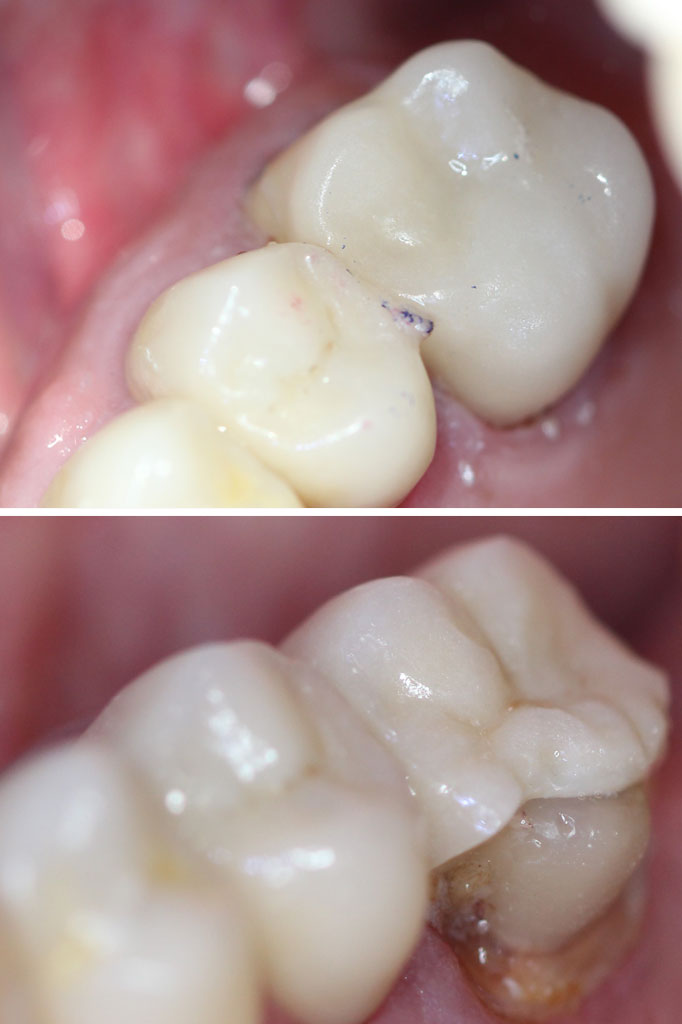 Same day replacement CEREC crown