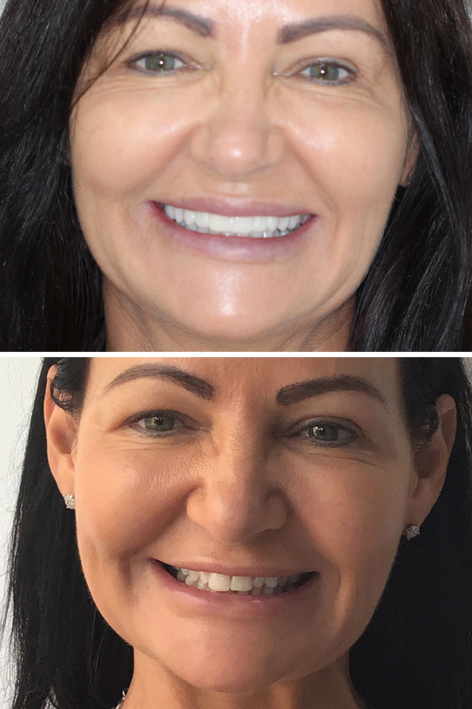 Smile makeover. Veneers