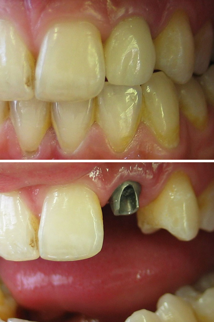 Anterior implant with crown