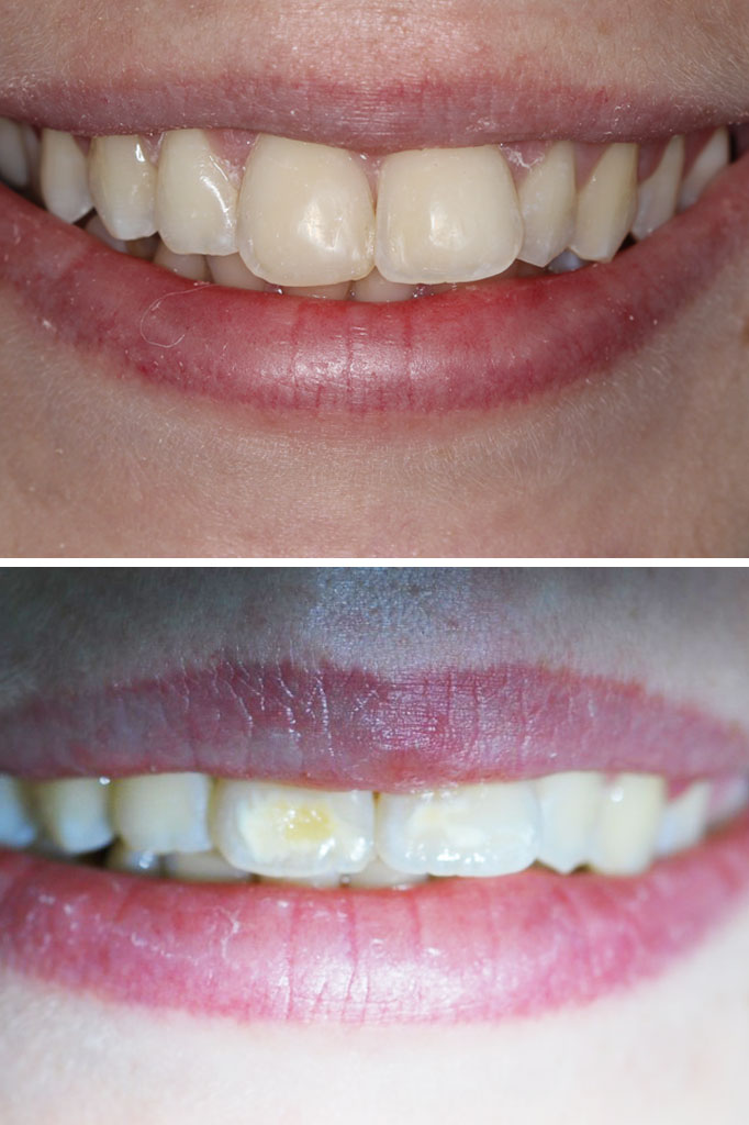 Composite bonding to correct discolouration